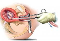 Nguyên nhân gây dính buồng tử cung