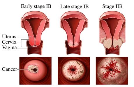 Viêm loét cổ tử cung có nguy hiểm không?