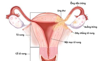 triệu chứng viêm buồng trứng 1