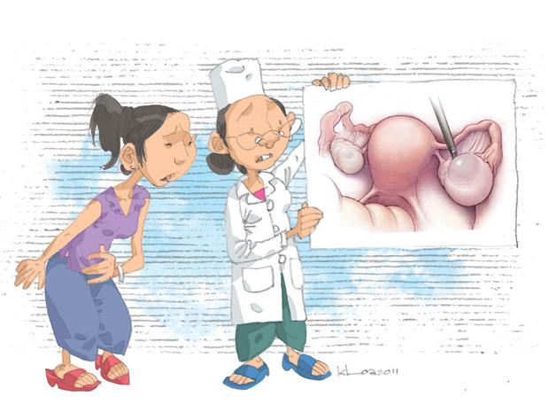 Mổ u nang buồng trứng có nguy hiểm không 2