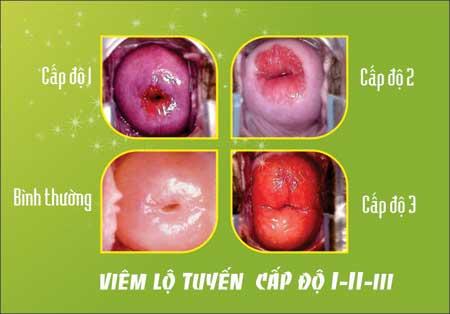 Tổng quan về viêm lộ tuyến cổ tử cung