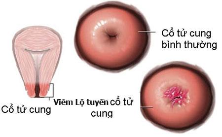 Viêm lộ tuyến cổ tử cung độ 1 1