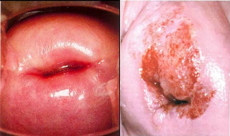 Viêm cổ tử cung - Hình ảnh lâm sàng
