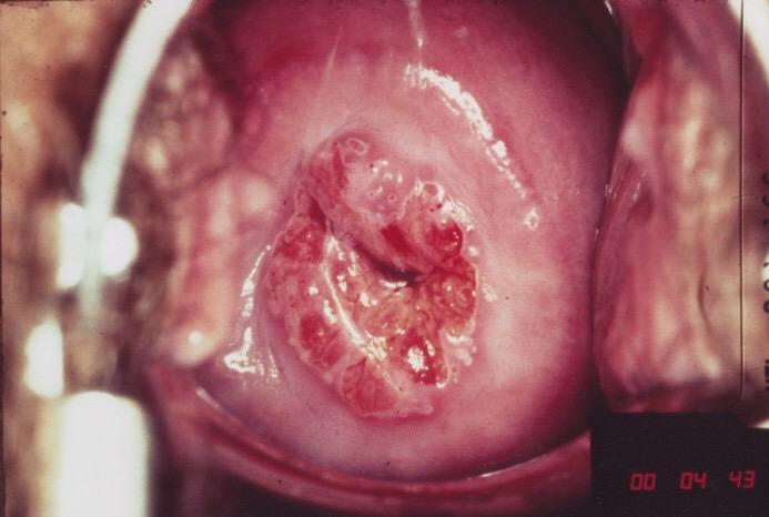Hình ảnh bệnh viêm cổ tử cung