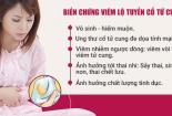 Biến chứng của viêm lộ tuyến cổ tử cung