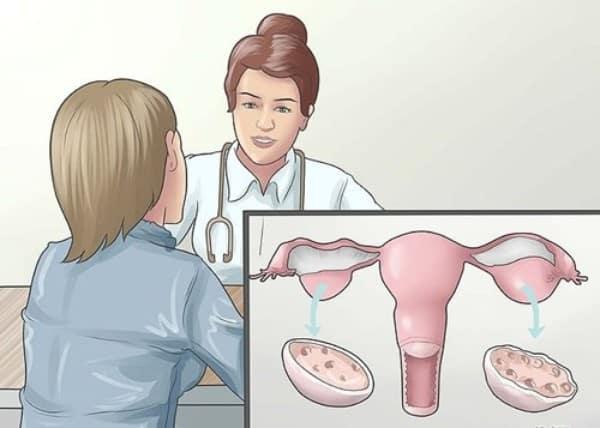 điều trị tắc vòi trứng sao cho hiệu quả