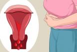 Lạc nội mạc tử cung khi mang thai