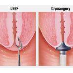 Cắt leep viêm lộ tuyến cổ tử cung