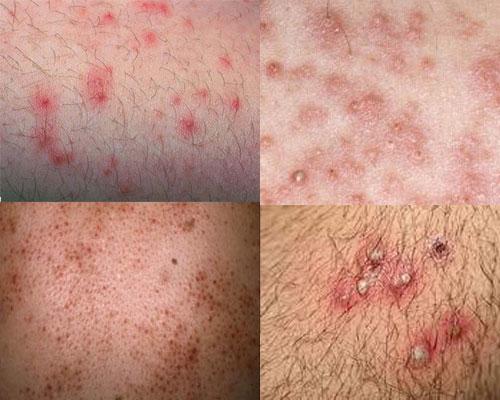 Thiện Hòa - Địa chỉ phòng khám điều trị viêm nang lông ở vùng kín hiệu quả?