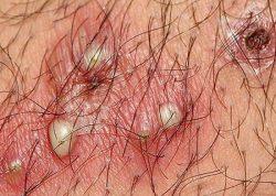 Viêm nang lông vùng kín là gì?