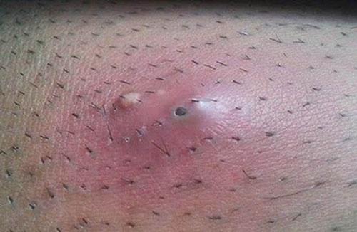 Nguyên nhân gây viêm nang lông ở vùng kín nữ