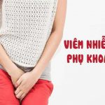 Phòng khám điều trị bệnh viêm nhiễm phụ khoa uy tín ở Hà Nội