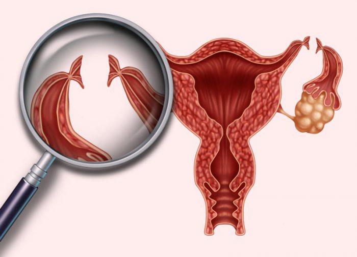 Viêm ống dẫn trứng sau sinh